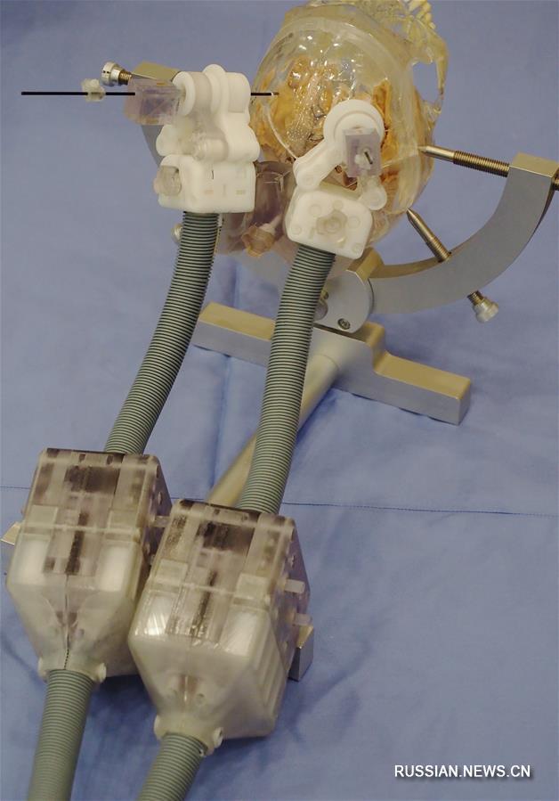 В Сянганским университете разработали роботизированную систему для операций на мозге